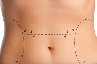 Liposuction + Tummy Tuck